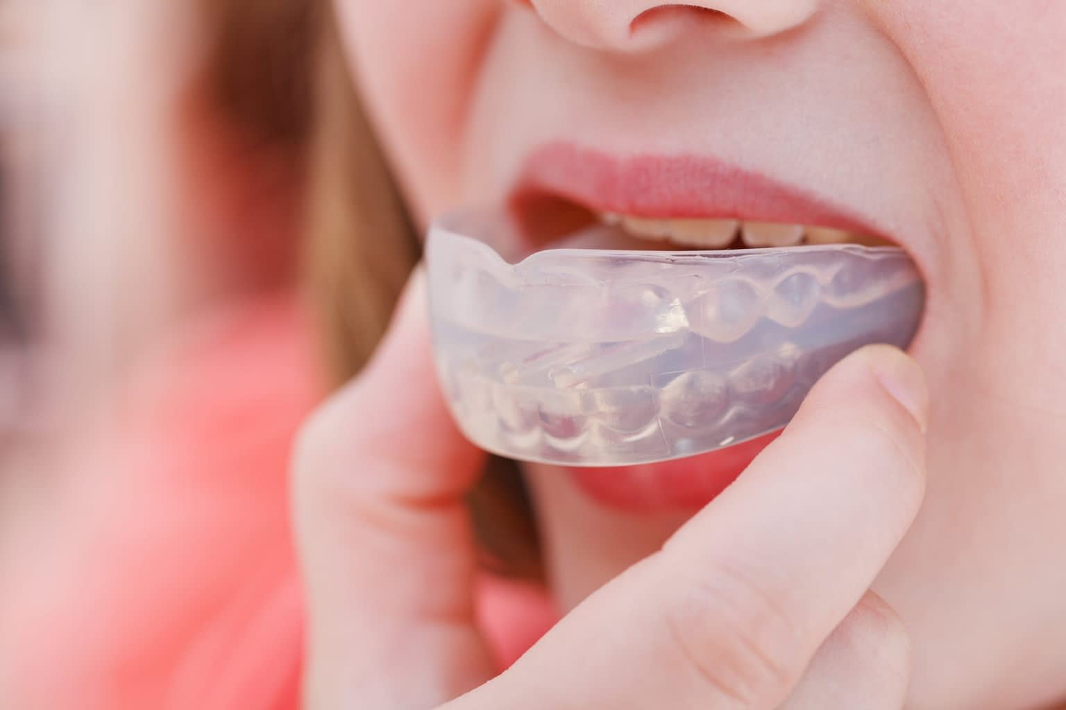 patient-wearing-a-dental-mouthguard