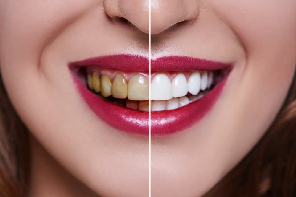 before and after results of white teeth