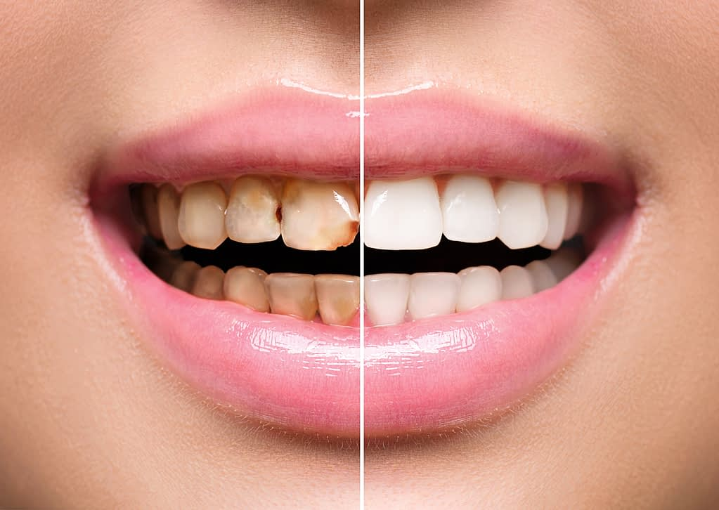 before and after results to get yellow teeth white again