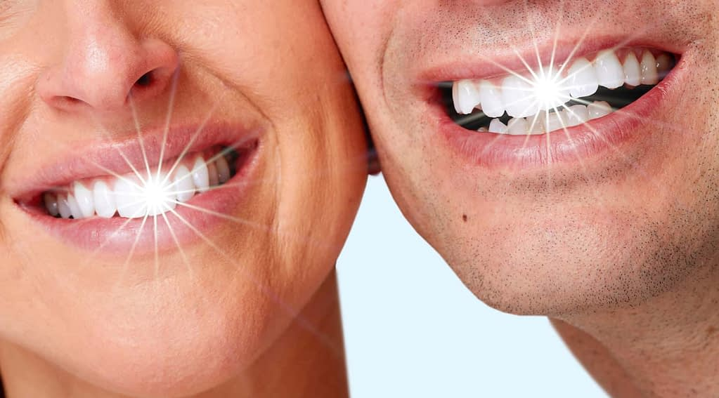 couple with white shiny teeth