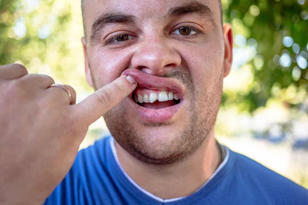 a man holding his lip displaying a broken tooth