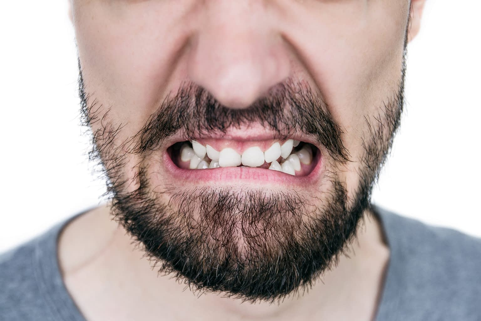 patient with crooked teeth
