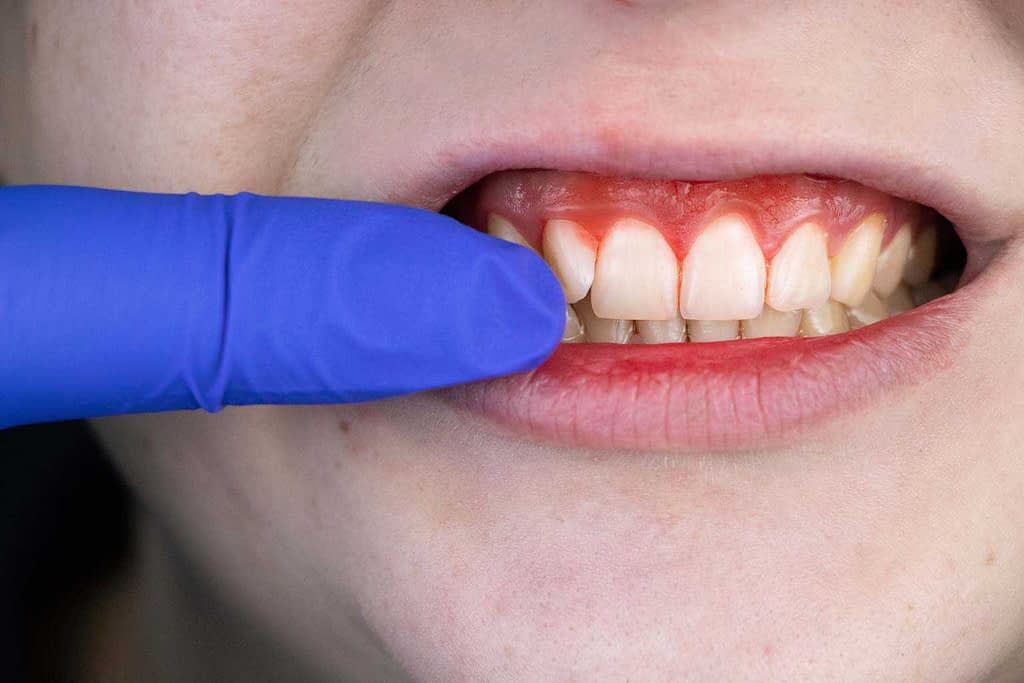 patient with gum irritation