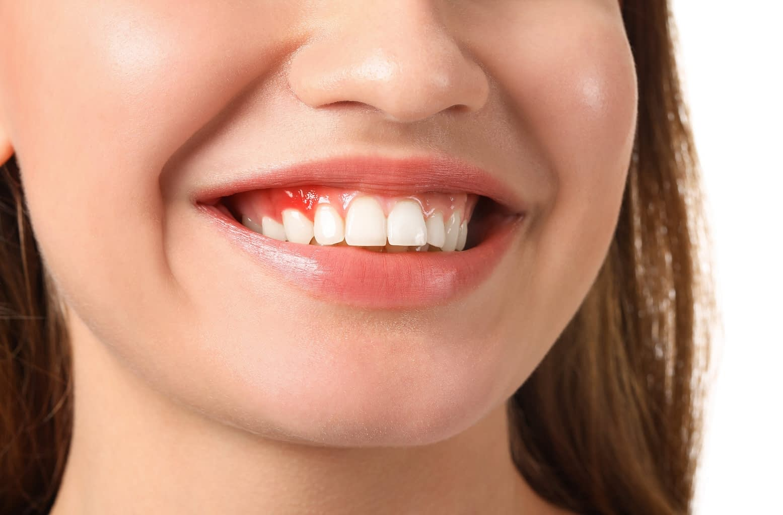 initial-signs-of-gum-disease